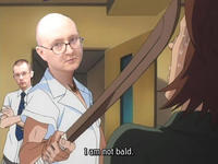 Why I Am So Bald?