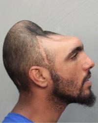 Half-head Mugshot / Carlos Rodriguez