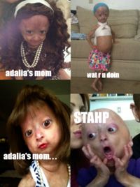 Adalia Rose