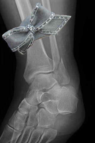 left-ankle-is-looking-stylish-despite-being-broken-28338-1232666227-0.jpg