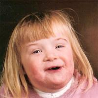 Down-Syndrome.jpg