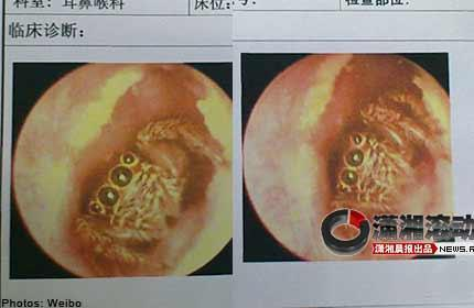 Spider found in woman's ear canal.